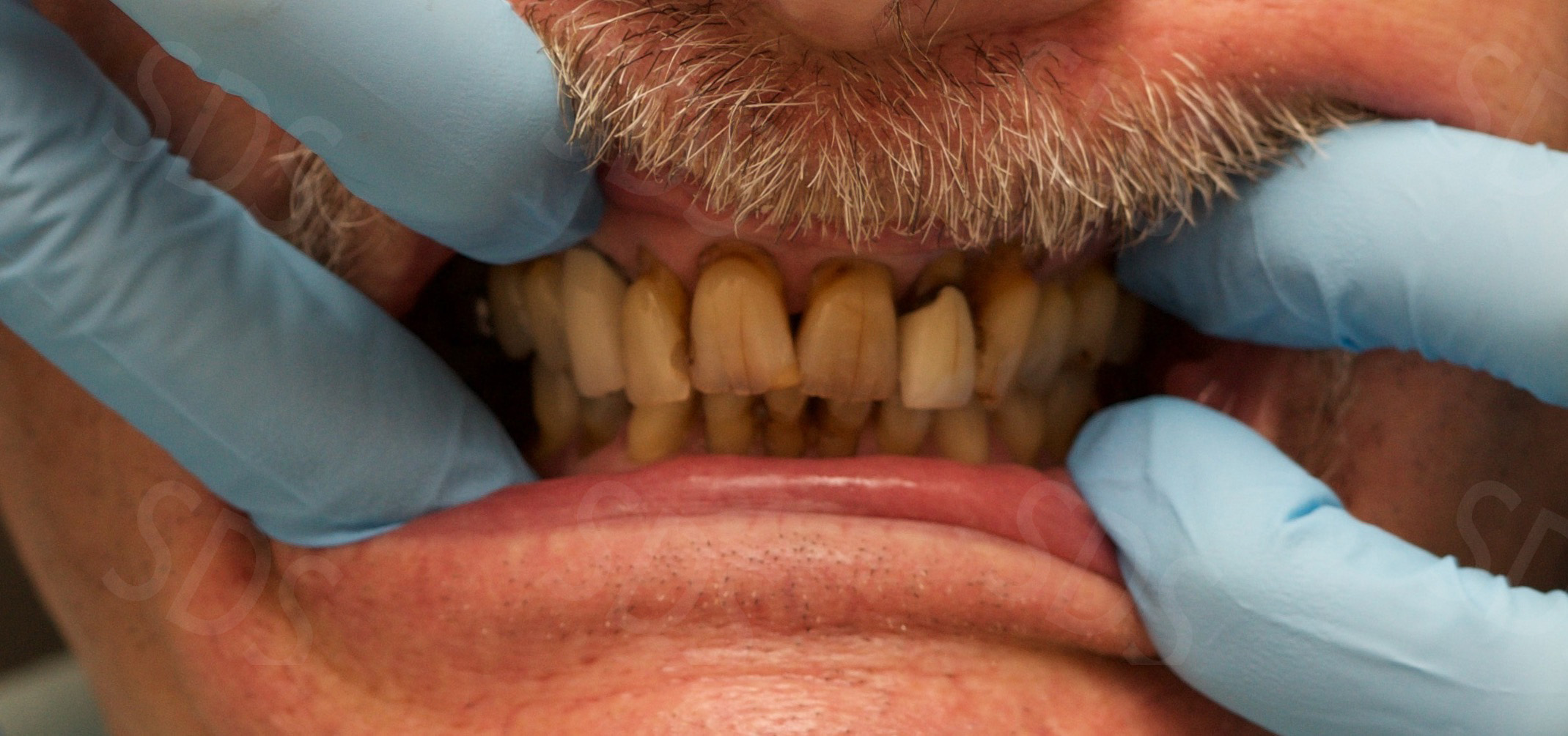 Basal Implants Full Mouth Restoration  Full Set of New Teeth
